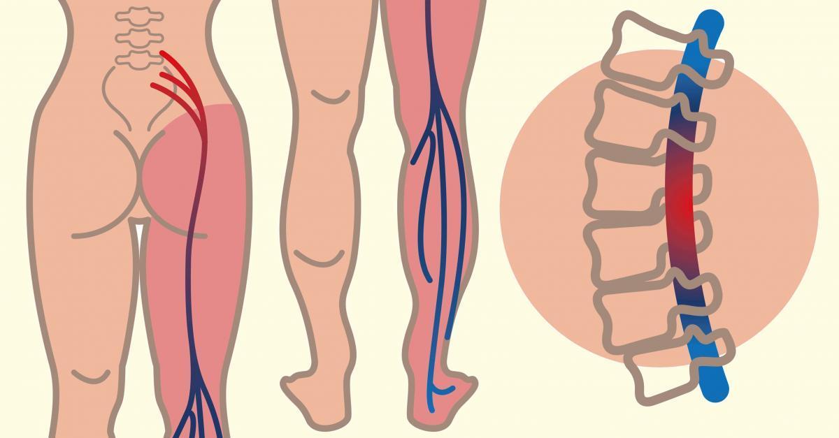 Վերացրեք նստատեղի նյարդի ցավերն ընդամենը 10 րոպեում այս հրաշք միջոցի շնորհիվ